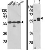 Fig. 5: Western blot analysis with GRP58 antibody Cat.-No. AP17626PU-N: LEFT: GRP58 (arrow) was detected using the purified antibody in A2058, A375, Ramos cell line lysates; RIGHT: GRP58 (arrow) was detected in 293 cell lysates either nontransfected (Lane 1) or transiently transfected with the PDIA3 gene (Lane 2)