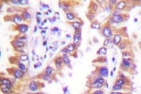 Fig. 6: Human lung carcinoma tissue (FFPE) stained with calnexin antibody Cat.-No. AP06425PU-N