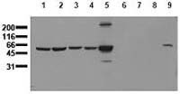 Fig.6: Detection of endogenous vimentin: Whole cell lysates of serum starved tumor cells were used. The immunoblot was probed with monoclonal vimentin antibody clone 11H6 Cat.-No. AM00158PU-N: Lane 1: HeLa; Lane 2: HepG2; Lane 3: HEK293; Lane 4: SH-SY5Y; Lane 5: MDCK; Lane 6: PC12; Lane 7: CMT 93; Lane 8: Neuro 2A; Lane 9: 3T3