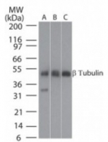 Fig. 3: Western blot analysis of beta tubulin (arrow-head) in A: human brain, B: mouse brain and C: rat brain tissue lysates using Cat.-No. AP21644PU-N