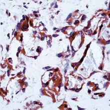 Fig. 1: Formalin fixed paraffin embedded (FFPE) human angiosarcoma stained with VEGFR-1/Flt-1 antibody Cat.-No. DP077-05