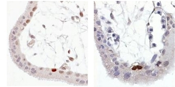 Fig. 1: Staining of Wild-type p53 expressed in formalin-fixed, paraffin-embedded (FFPE) human trophoblast sections. 1a: anti-p53 antibody (total), 1b: anti-p53 antibody clone FP3.2 (phospho Ser392) Cat.-No. AM03100PU-N