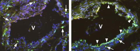 Fig. 2: Immunofluorescence staining (green) using a polyclonal antibody directed against the C-terminal end of native soluble VEGFR-1/Flt-1 Cat.-No. DP3522 (2a) and a monoclonal antibody directed against the extracellular domain of the membrane-bound VEGFR-1/Flt-1 Cat.-No. DM3507 (2b). Two neighboring sections of a Human Vein (V), located near a hemangioma, are visualized. The antibody against the soluble VEGFR-1/Flt-1 marked single cells (arrows) within the media and adventitia of the vein. The antibody against the membrane-bound VEGFR-1/Flt-1 marked single cells (arrows) and the endothelium (arrowhead) of the vein. Cell nuclei are stained with Dapi (blue).The experiment was performed by K. Butler and J. Wilting, University Göttingen, Germany