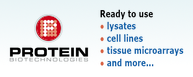 Protein Biotechnologies - Ready to use  lysates, cell lines, tissue microarrays and more...
